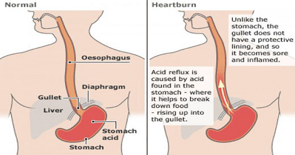 Doing-these-Simple-Home-Remedies-to-Relieve-Heartburn,-Acid-Reflux-or-GERD-0