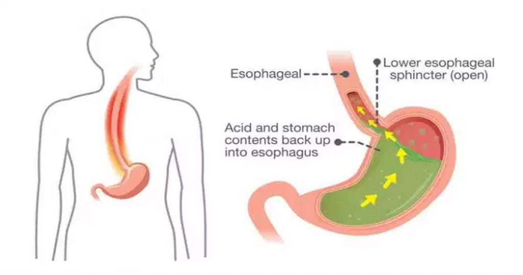 Doing-these-Simple-Home-Remedies-to-Relieve-Heartburn,-Acid-Reflux-or-GERD-1