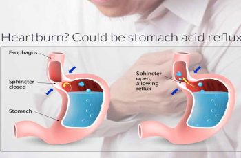 Doing-these-Simple-Home-Remedies-to-Relieve-Heartburn,-Acid-Reflux-or-GERD