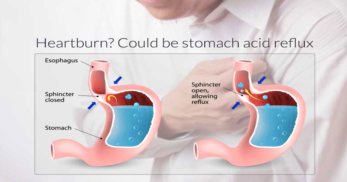 Doing These Simple Home Remedies To Relieve Heartburn Acid Reflux Or Gerd Readit