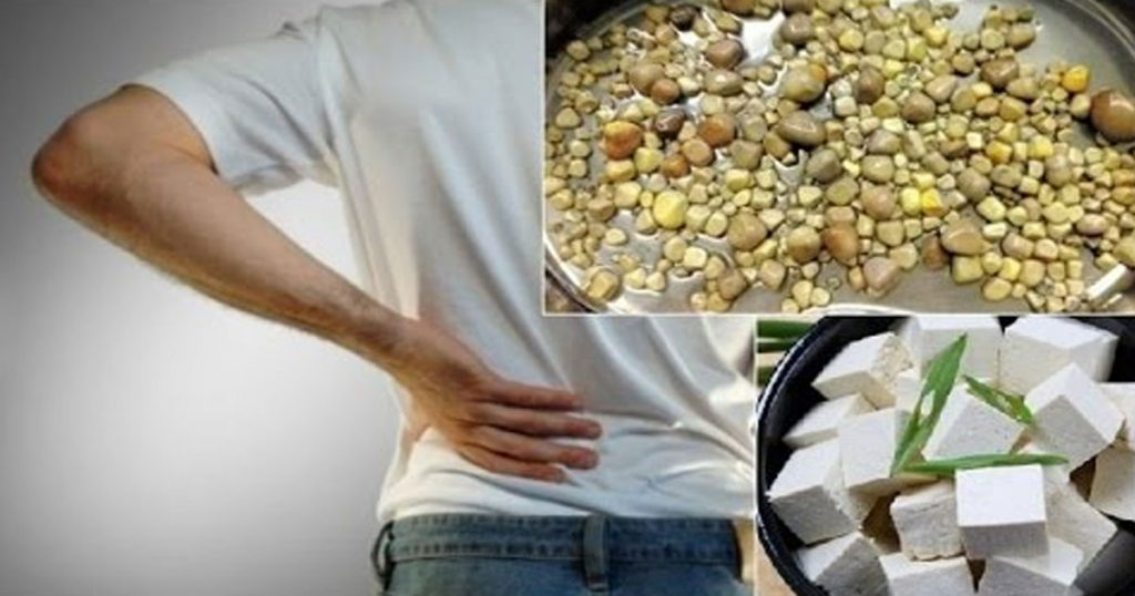 Excessive-Eating-of-Tofu-Resulted-in-420-Kidney-Stones