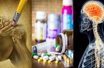 These-20-Medications-Can-Cause-Memory-Loss