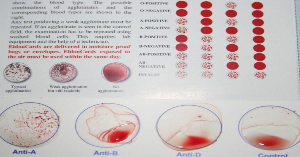 If-Your-Blood-Type-is-If-Your-Blood-Type-is-O-3